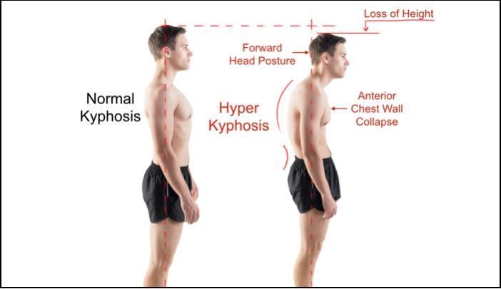 Kyphosis-Normal-vs-Hyper-3